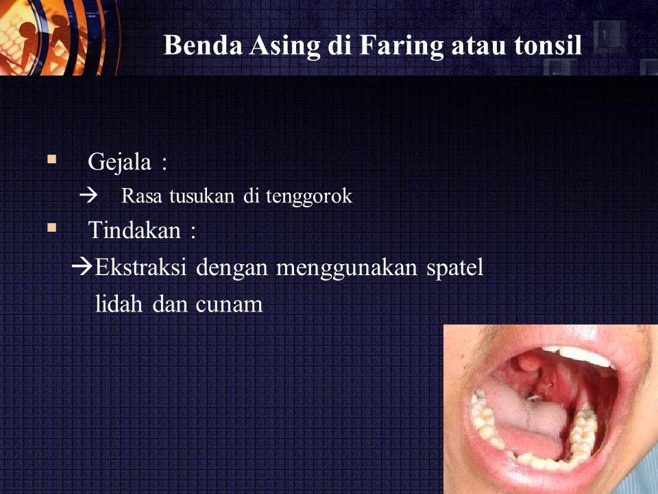 Benda Asing di Faring atau tonsil