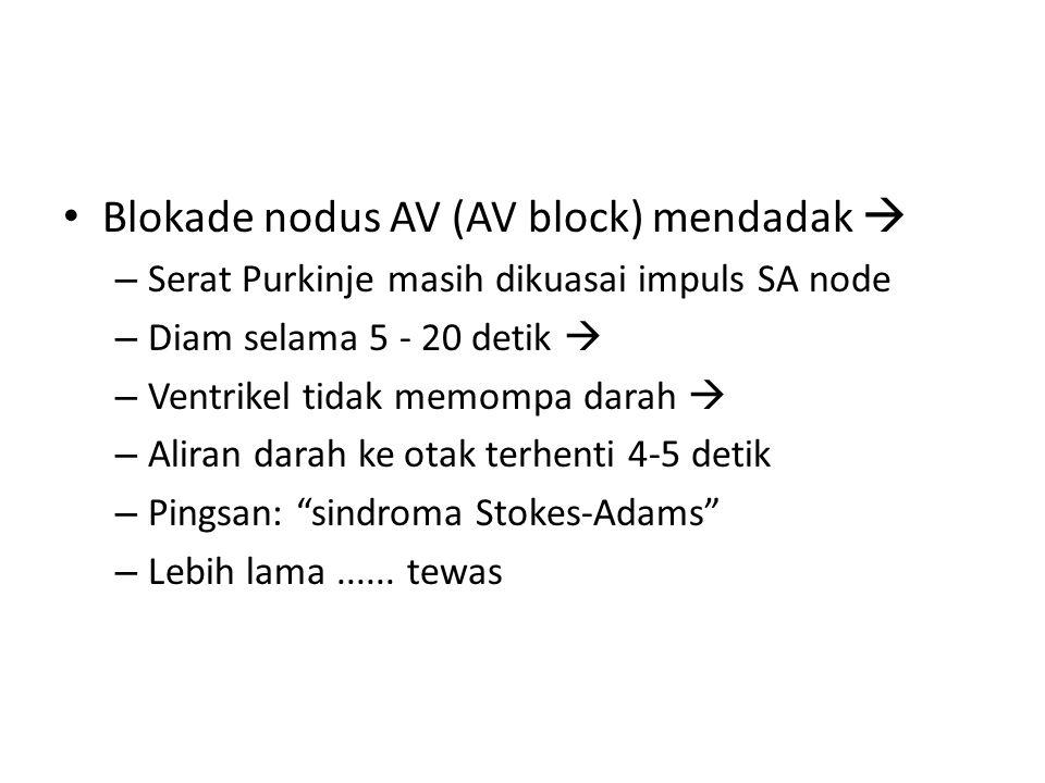 Blokade nodus AV (AV block) mendadak 
