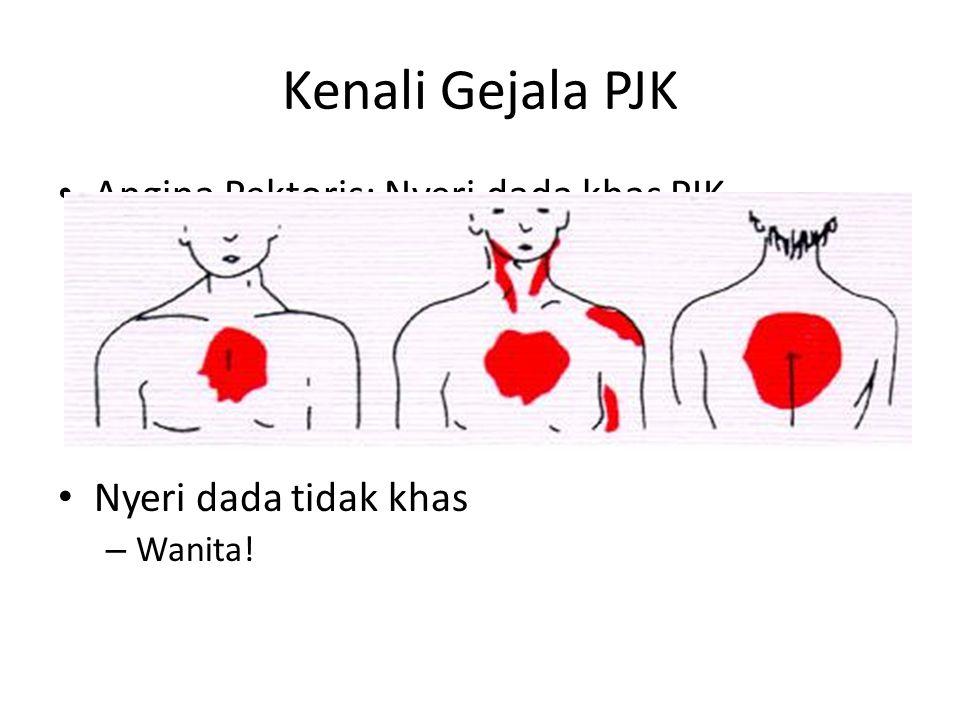Kenali Gejala PJK Angina Pektoris: Nyeri dada khas PJK