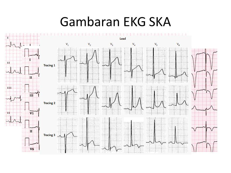 Gambaran EKG SKA