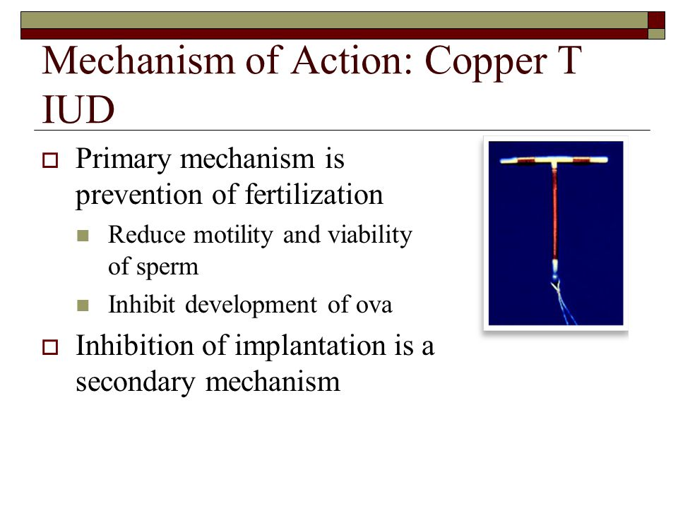 Mechanism of Action: Copper T IUD