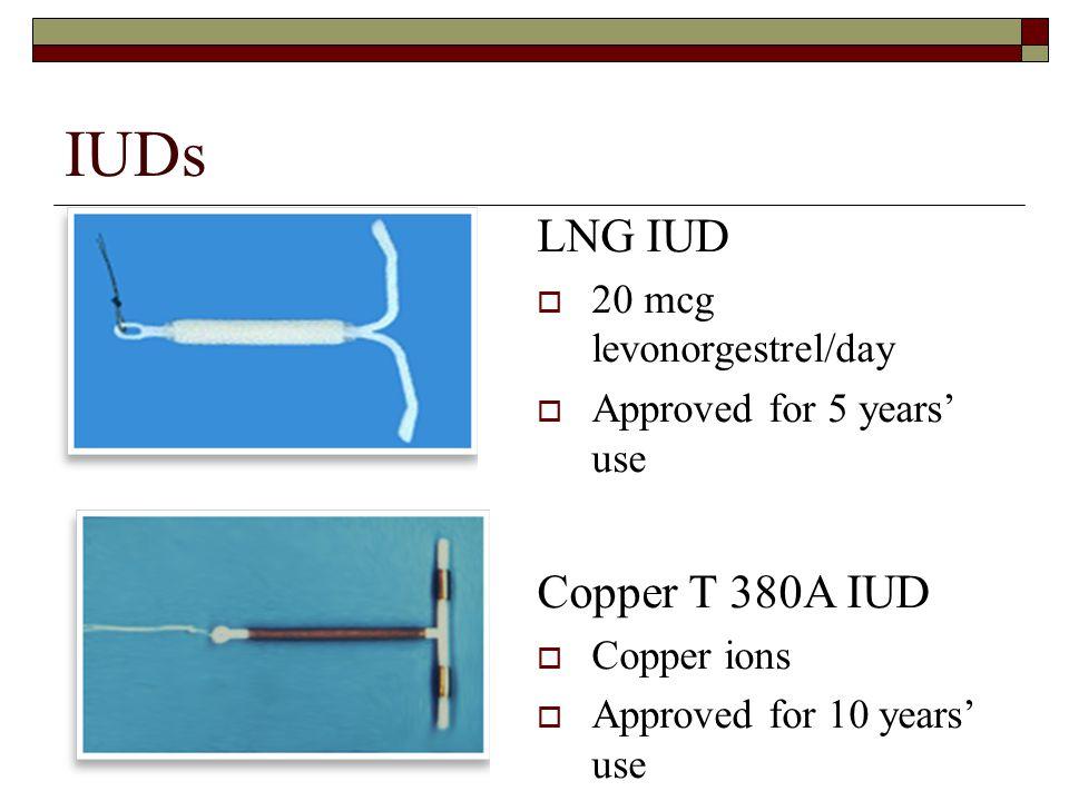 IUDs LNG IUD Copper T 380A IUD 20 mcg levonorgestrel/day