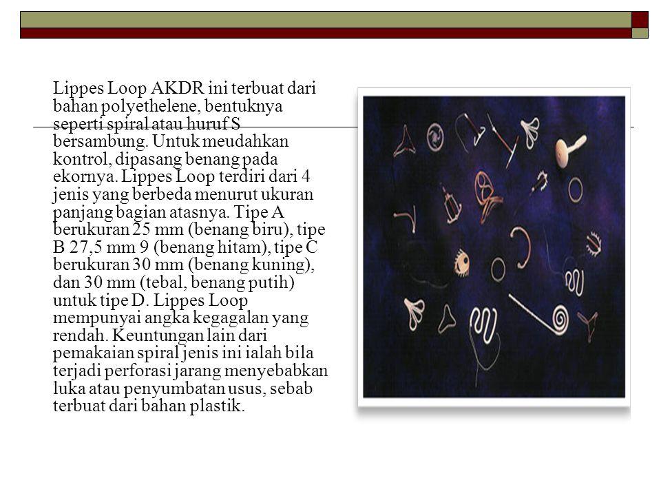 Lippes Loop AKDR ini terbuat dari bahan polyethelene, bentuknya seperti spiral atau huruf S bersambung.