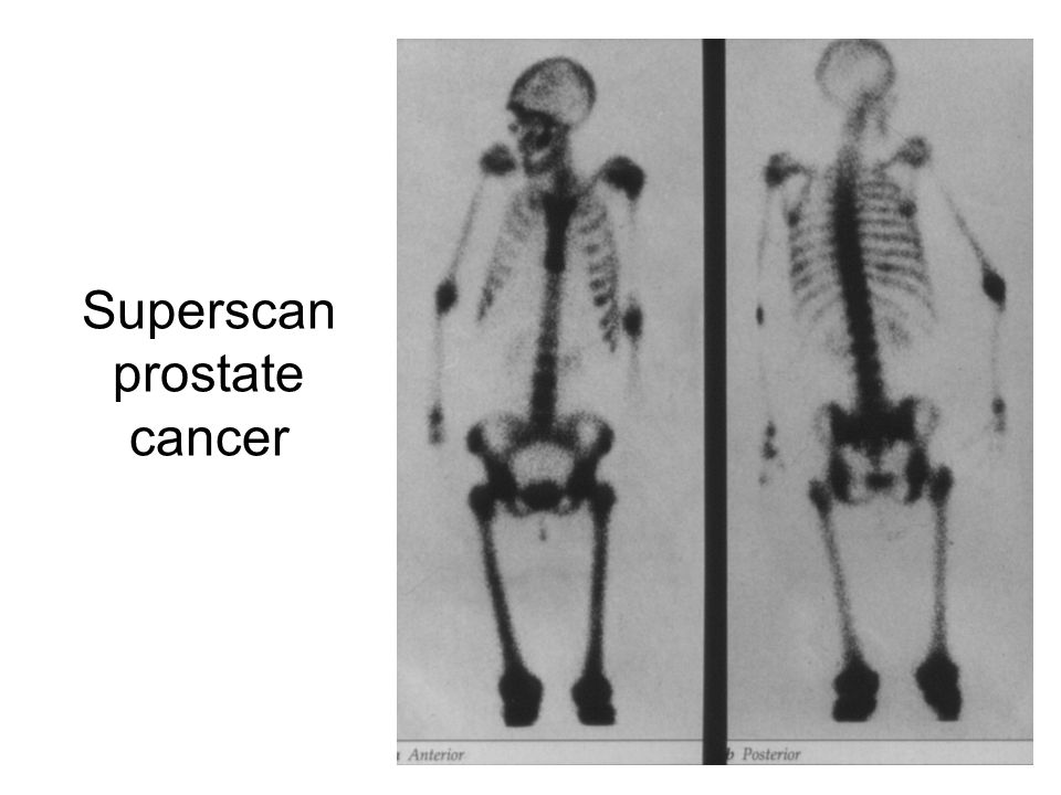 Superscan prostate cancer