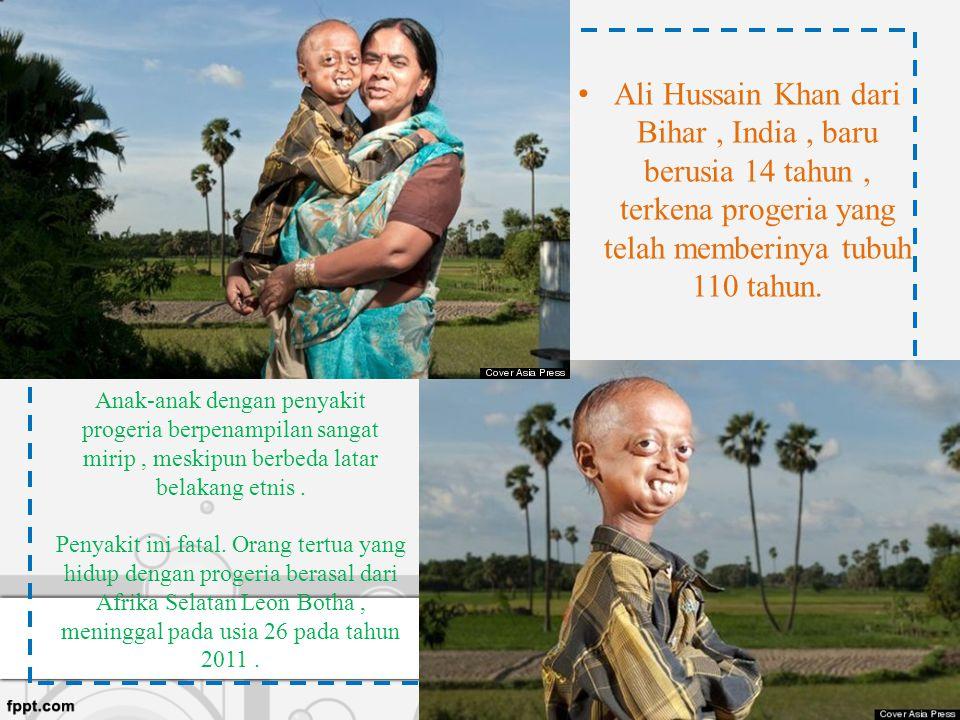 Ali Hussain Khan dari Bihar , India , baru berusia 14 tahun , terkena progeria yang telah memberinya tubuh 110 tahun.