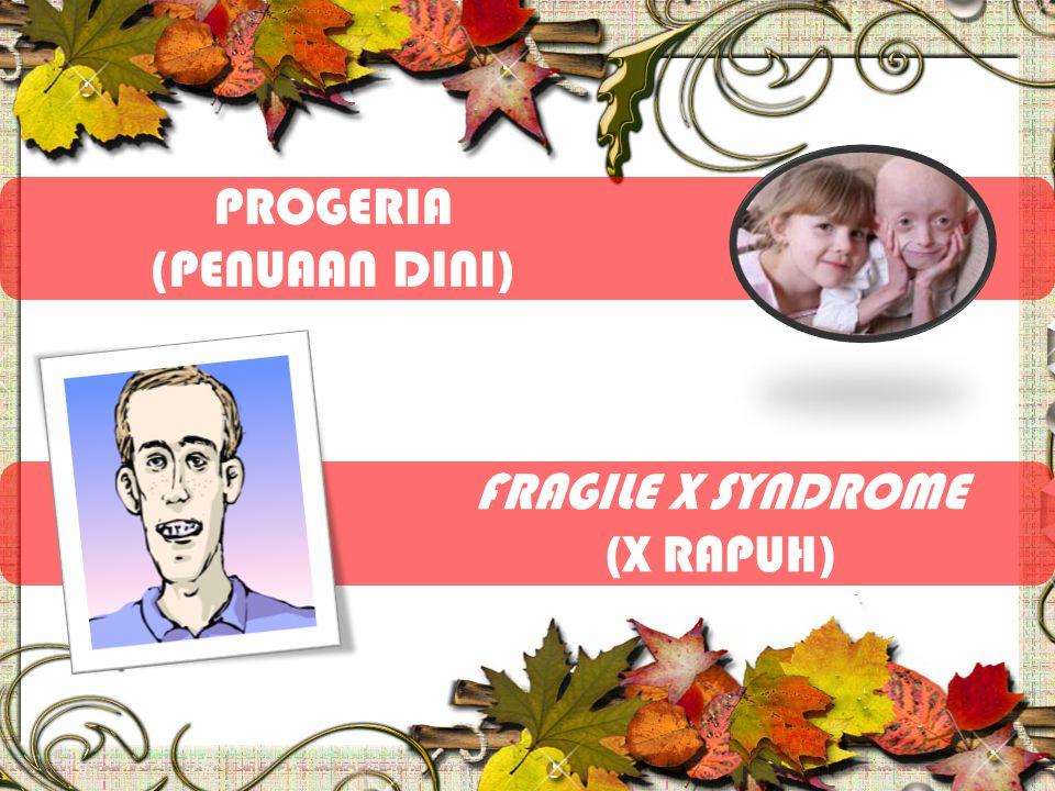 PROGERIA (PENUAAN DINI) FRAGILE X SYNDROME (X RAPUH)