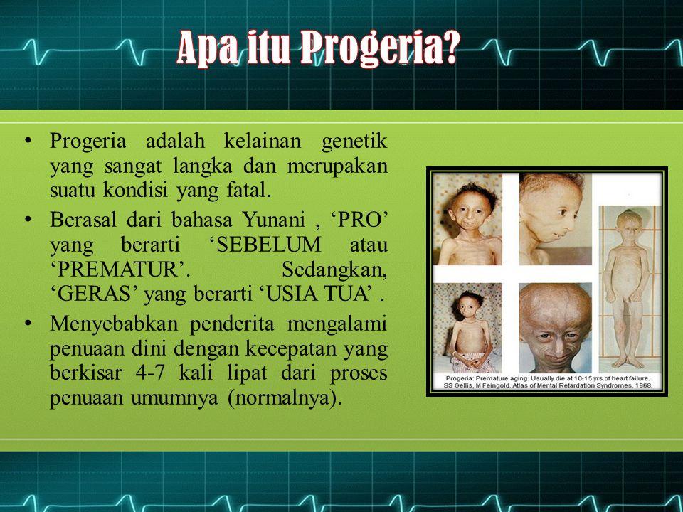 Apa itu Progeria Progeria adalah kelainan genetik yang sangat langka dan merupakan suatu kondisi yang fatal.