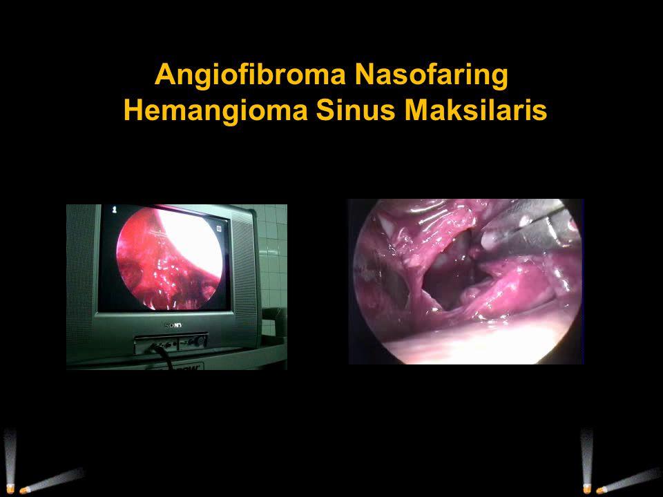 Angiofibroma Nasofaring Hemangioma Sinus Maksilaris