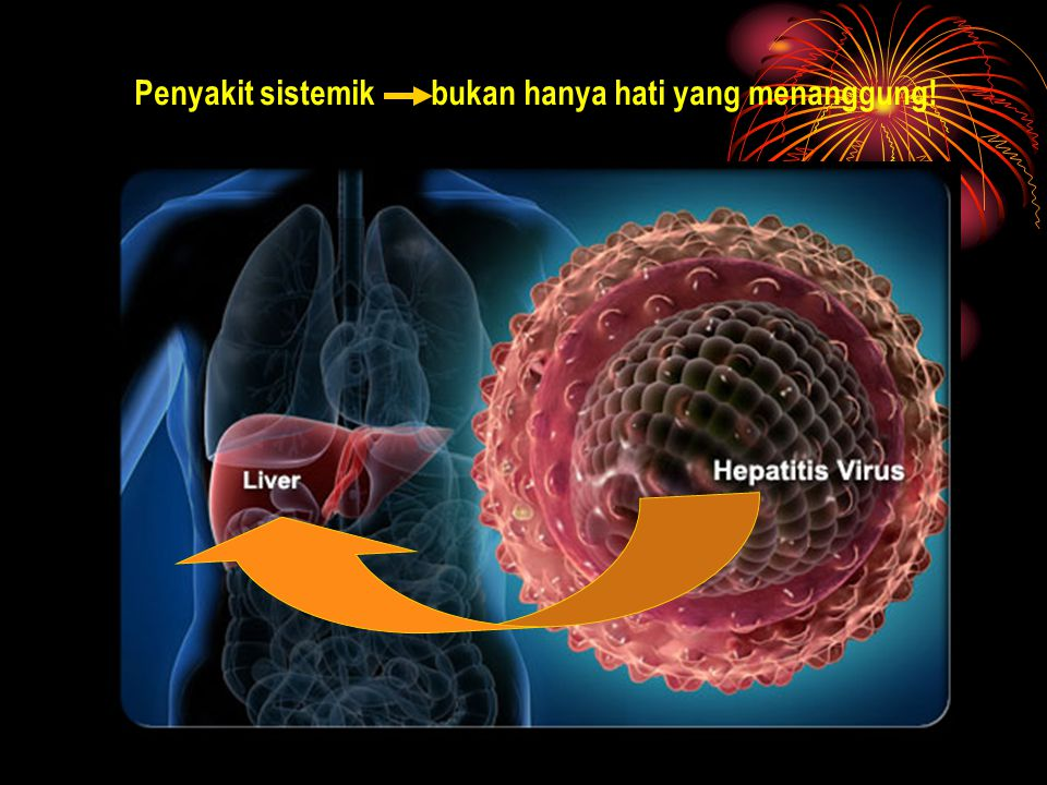 Penyakit sistemik bukan hanya hati yang menanggung!