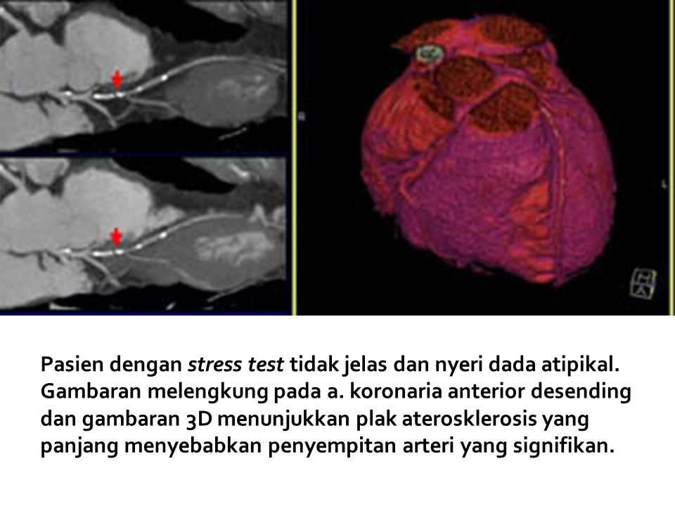 Pasien dengan stress test tidak jelas dan nyeri dada atipikal