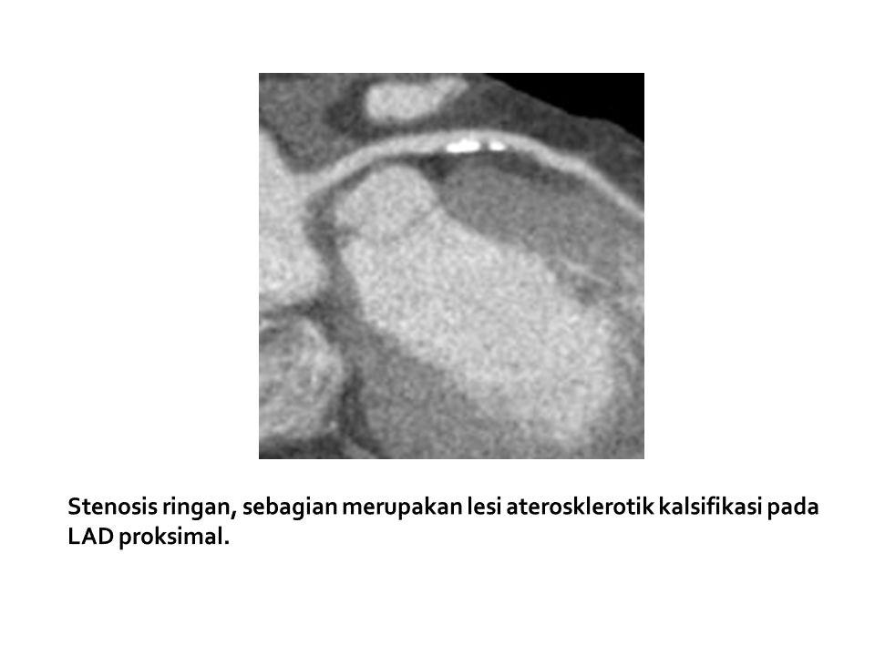 Stenosis ringan, sebagian merupakan lesi aterosklerotik kalsifikasi pada LAD proksimal.