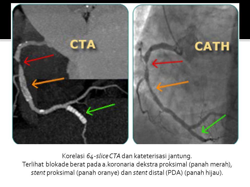 Korelasi 64-slice CTA dan kateterisasi jantung