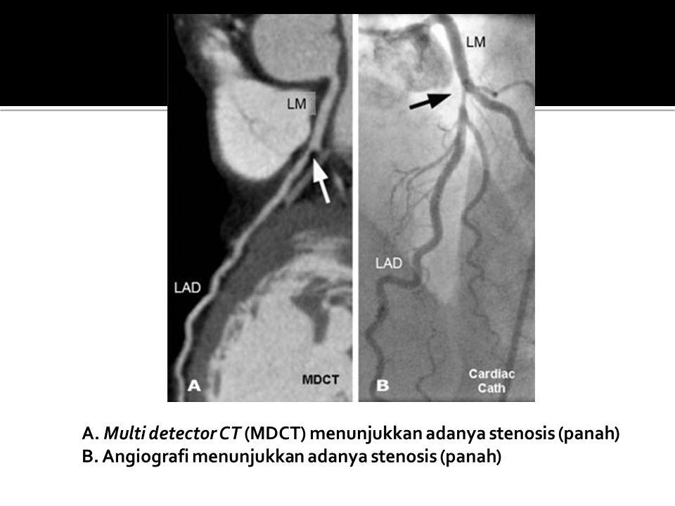 A. Multi detector CT (MDCT) menunjukkan adanya stenosis (panah) B