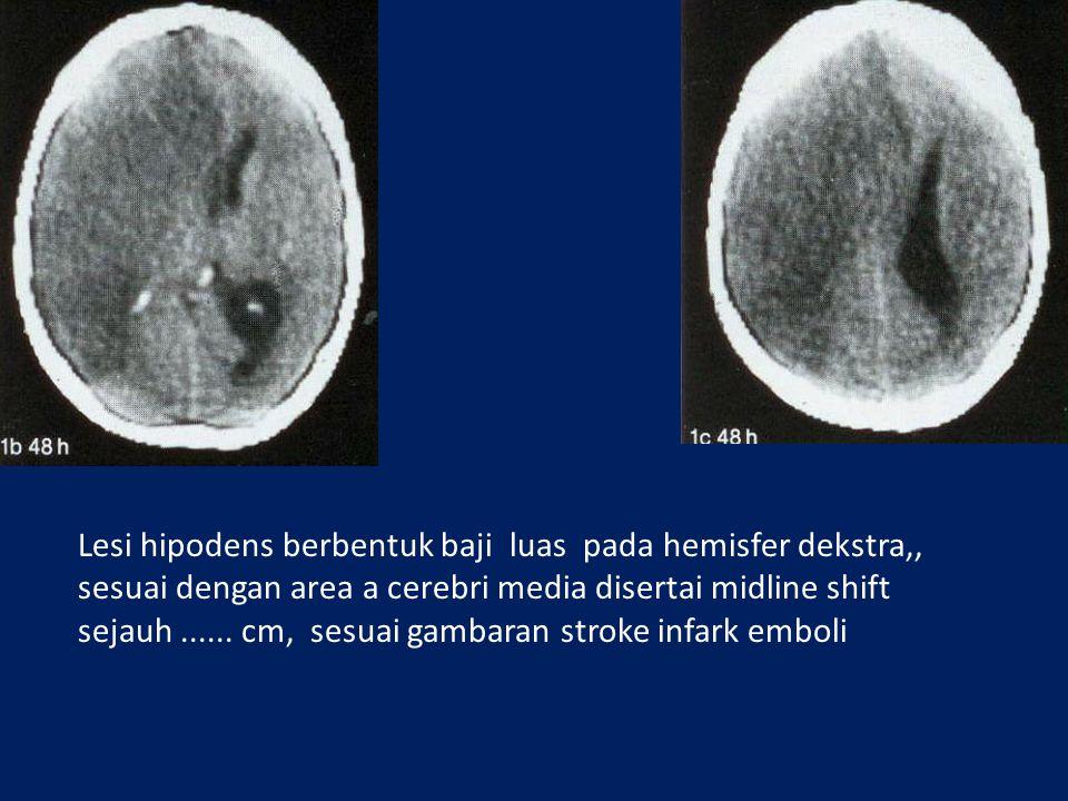 Lesi hipodens berbentuk baji luas pada hemisfer dekstra,,