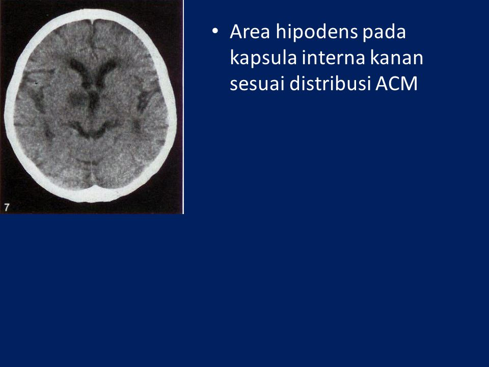 Area hipodens pada kapsula interna kanan sesuai distribusi ACM
