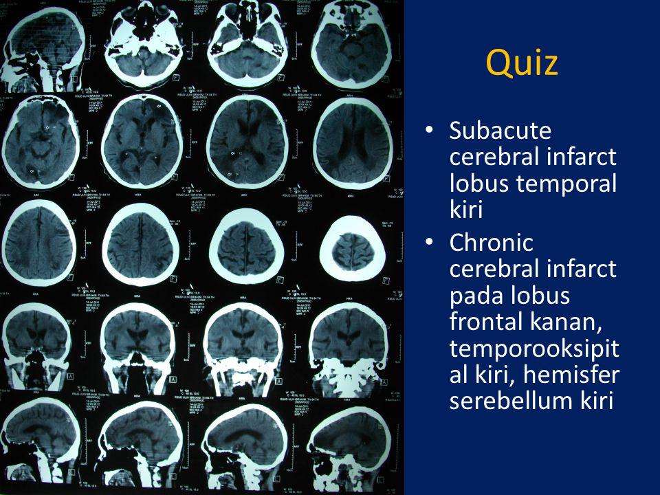 Quiz Subacute cerebral infarct lobus temporal kiri