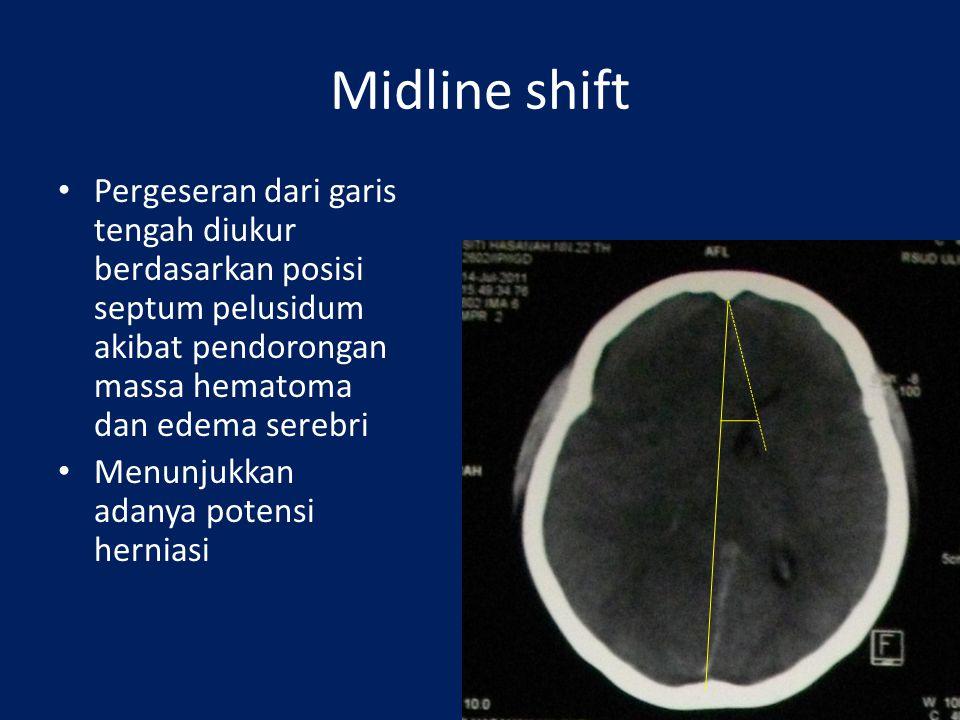 Midline shift Pergeseran dari garis tengah diukur berdasarkan posisi septum pelusidum akibat pendorongan massa hematoma dan edema serebri.