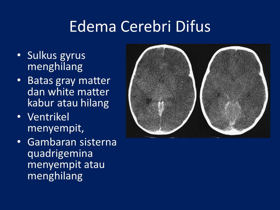 Edema Cerebri Difus Sulkus gyrus menghilang