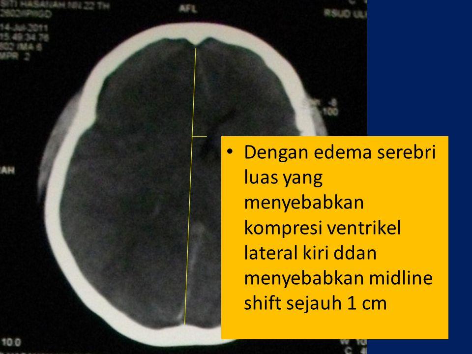Dengan edema serebri luas yang menyebabkan kompresi ventrikel lateral kiri ddan menyebabkan midline shift sejauh 1 cm