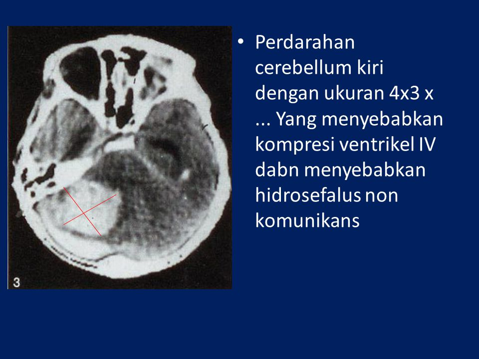 Perdarahan cerebellum kiri dengan ukuran 4x3 x