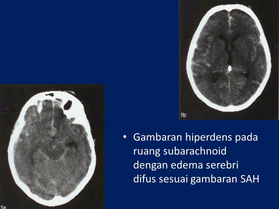 Gambaran hiperdens pada ruang subarachnoid dengan edema serebri difus sesuai gambaran SAH