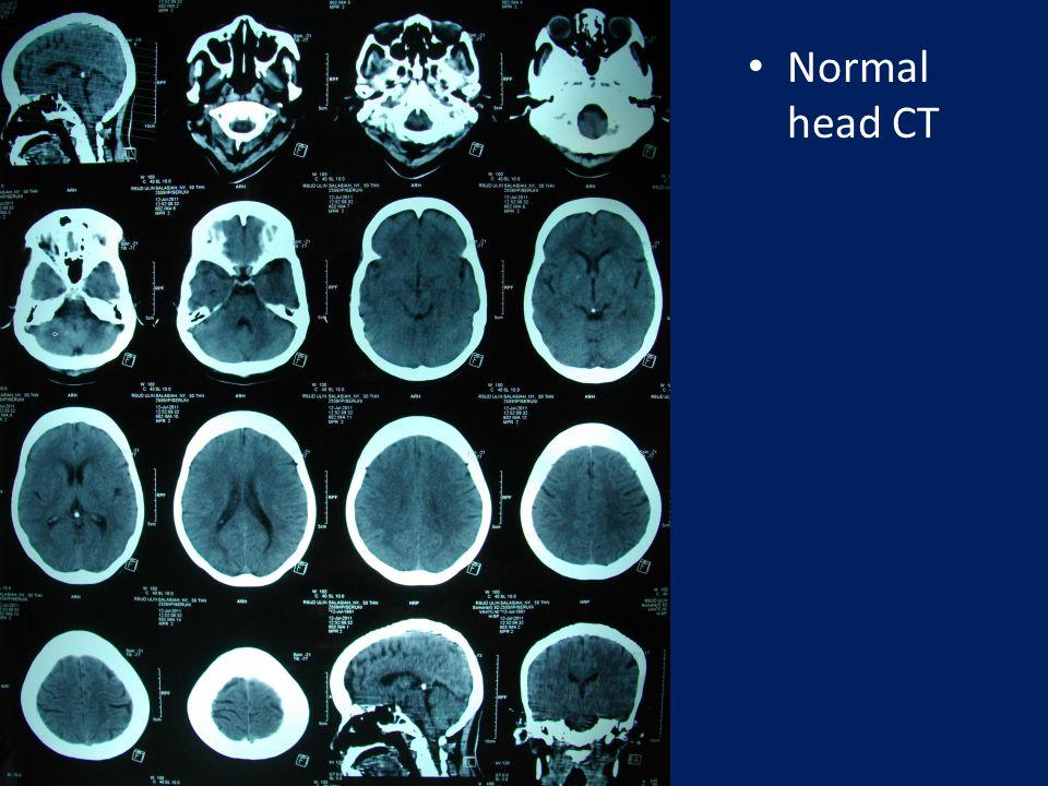 Normal head CT