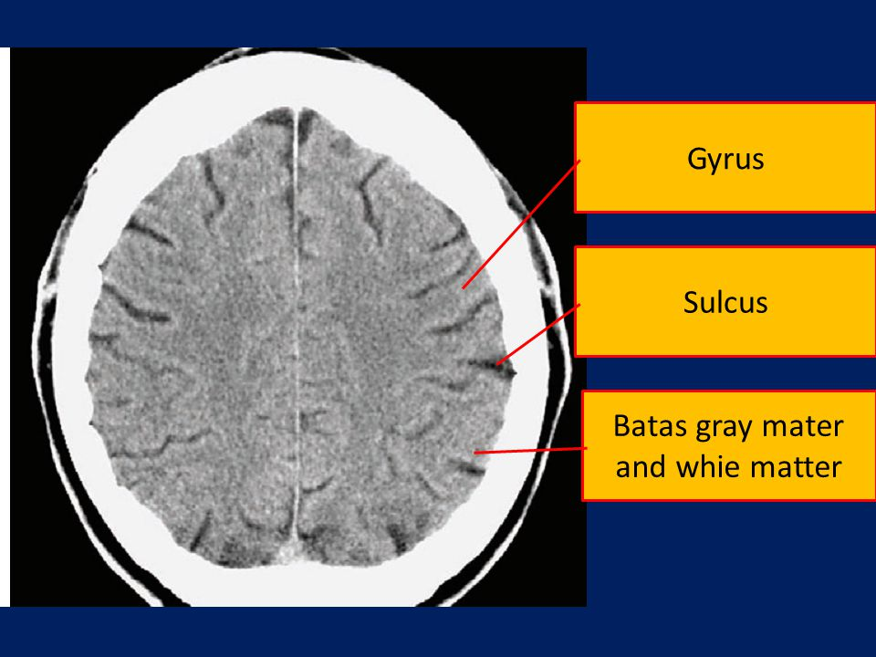 Batas gray mater and whie matter
