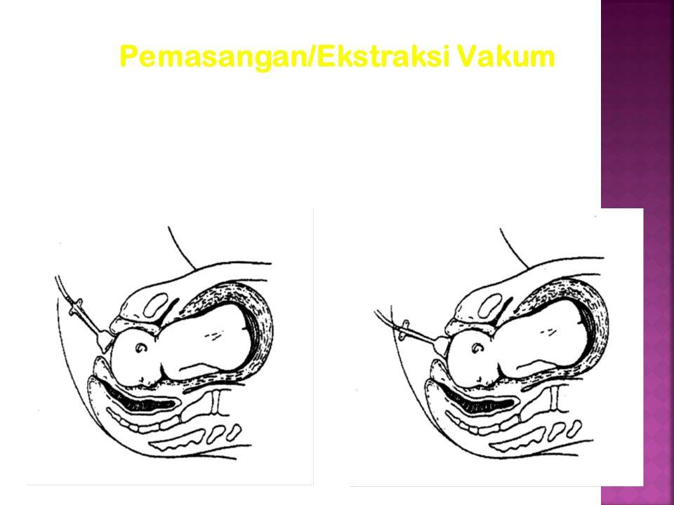 Pemasangan/Ekstraksi Vakum