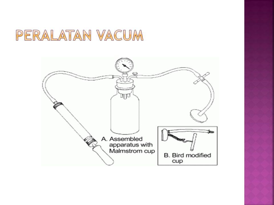 Peralatan Vacum