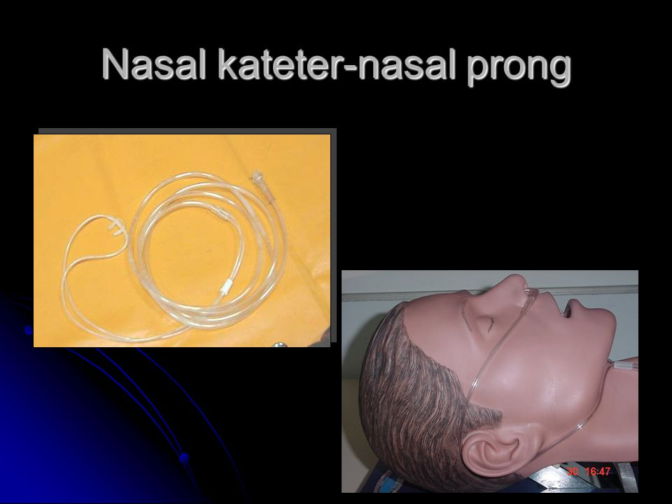Nasal kateter-nasal prong