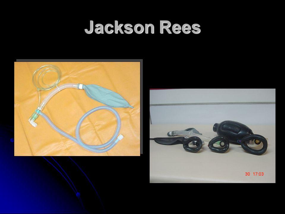 Jackson Rees