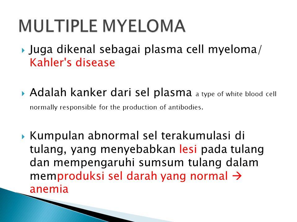 MULTIPLE MYELOMA Juga dikenal sebagai plasma cell myeloma/ Kahler s disease.