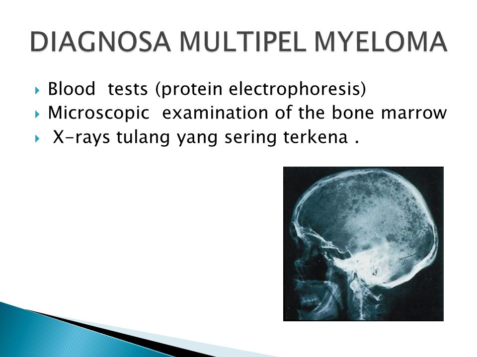 DIAGNOSA MULTIPEL MYELOMA