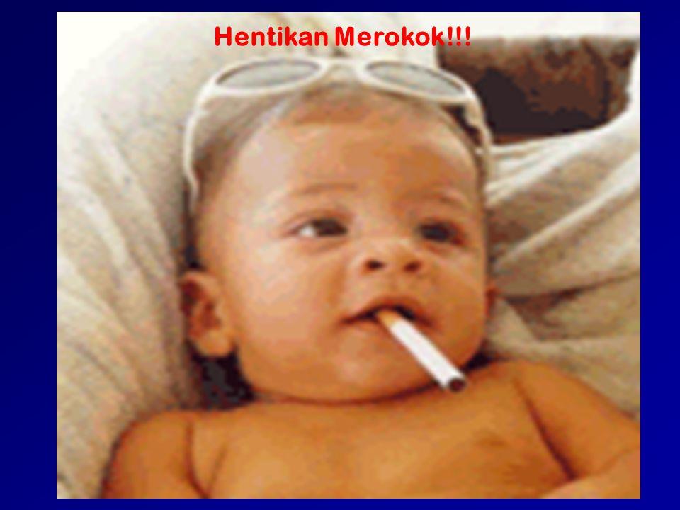 Hentikan Merokok!!!