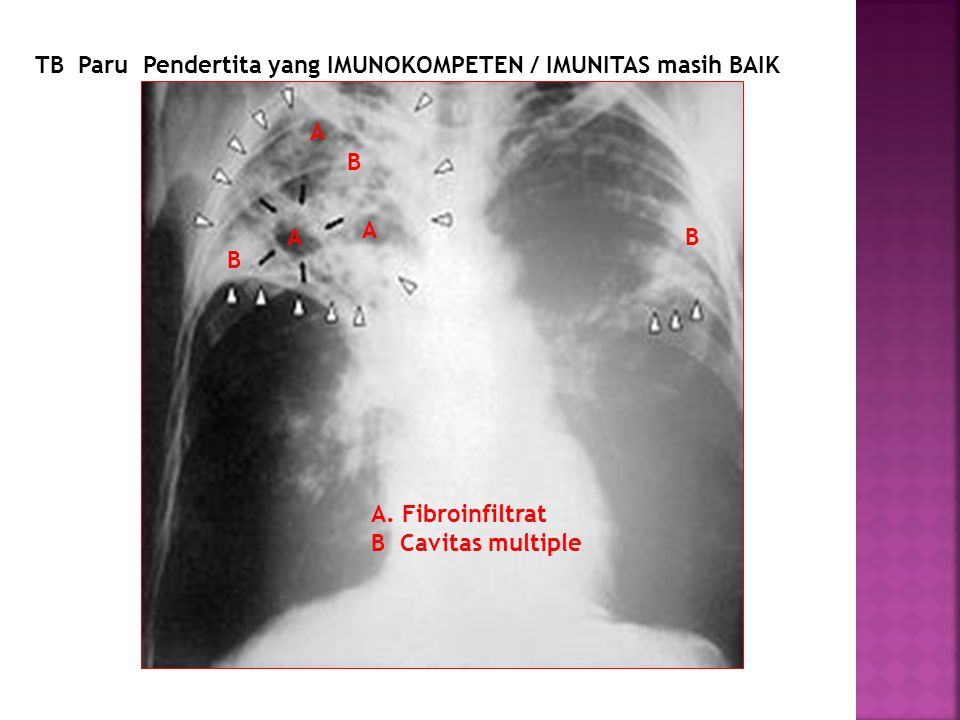 TB Paru Pendertita yang IMUNOKOMPETEN / IMUNITAS masih BAIK