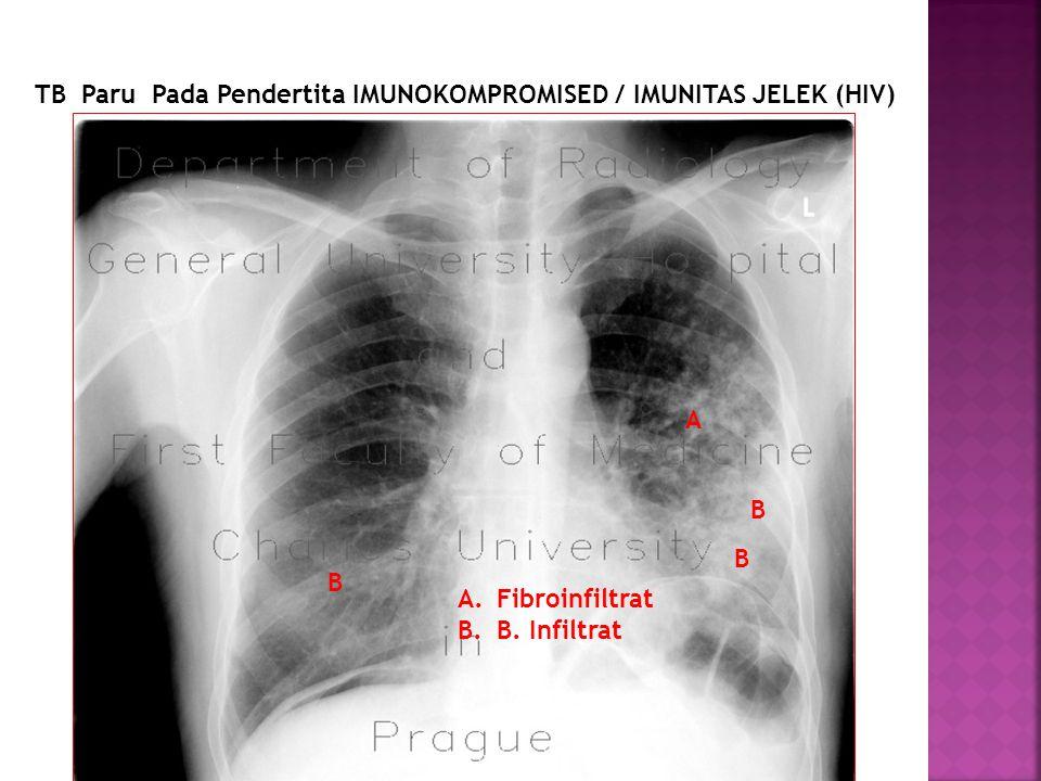TB Paru Pada Pendertita IMUNOKOMPROMISED / IMUNITAS JELEK (HIV)