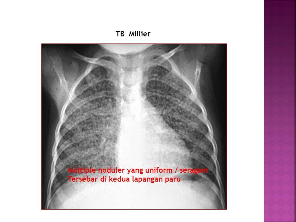 TB Millier Multiple noduler yang uniform / seragam Tersebar di kedua lapangan paru
