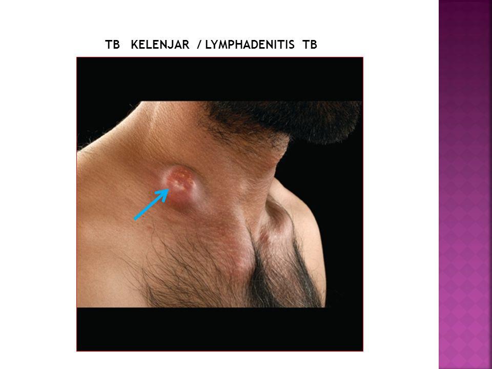 TB KELENJAR / LYMPHADENITIS TB