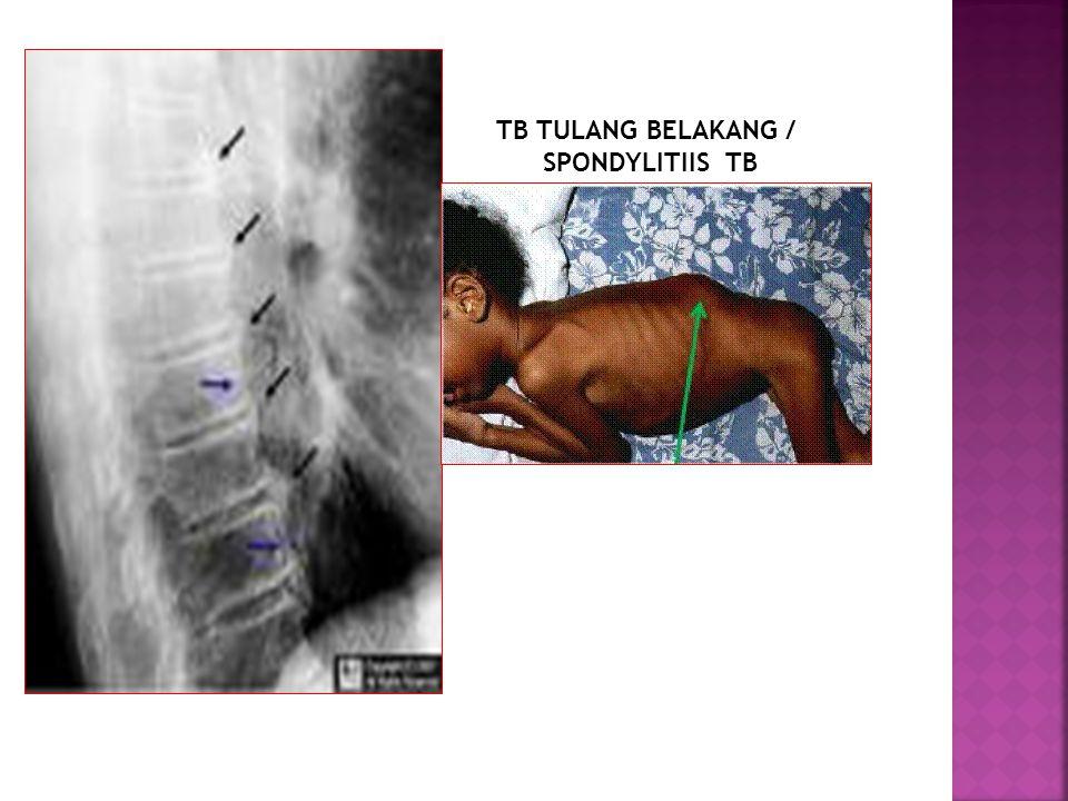 TB TULANG BELAKANG / SPONDYLITIIS TB