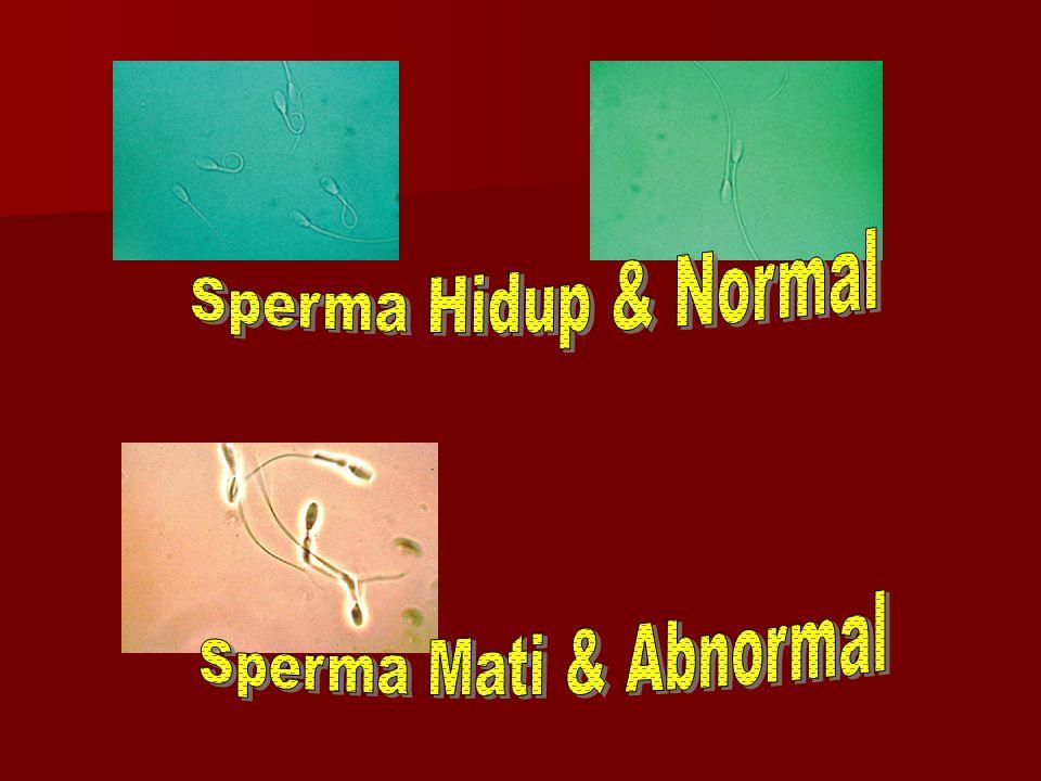 Sperma Hidup & Normal Sperma Mati & Abnormal
