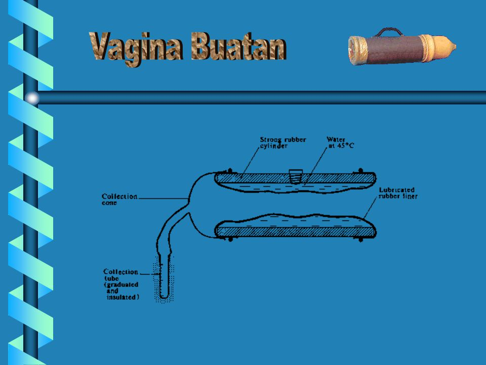 Vagina Buatan