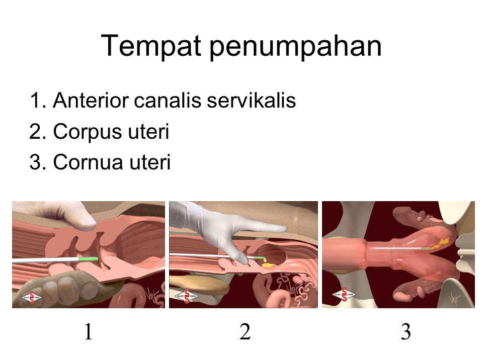 Tempat penumpahan 1 2 3 1. Anterior canalis servikalis 2. Corpus uteri