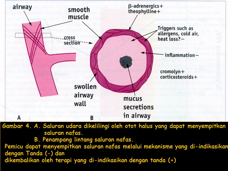 Gambar 4. A. Saluran udara dikelilingi oleh otot halus yang dapat menyempitkan