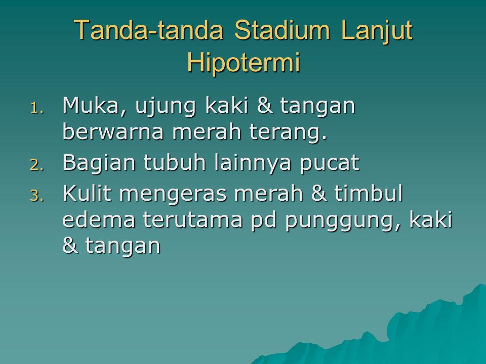 Tanda-tanda Stadium Lanjut Hipotermi