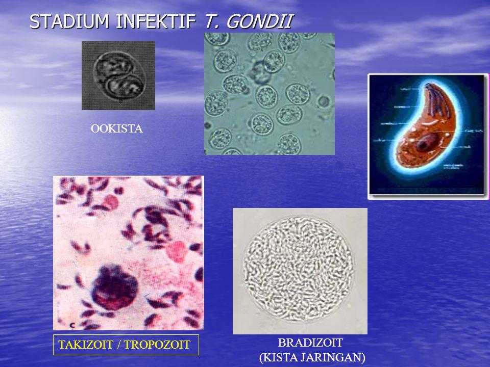 STADIUM INFEKTIF T. GONDII