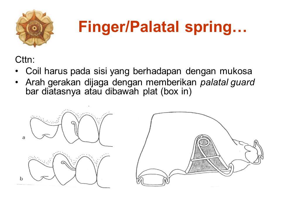 Finger/Palatal spring…