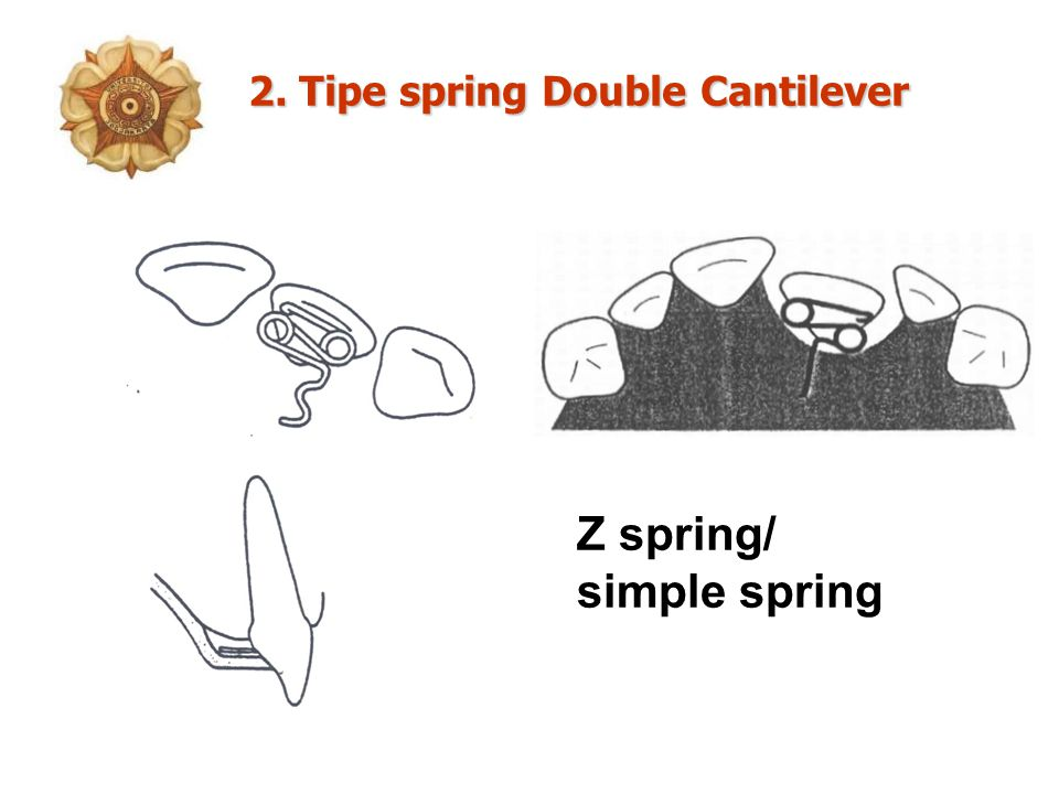 2. Tipe spring Double Cantilever