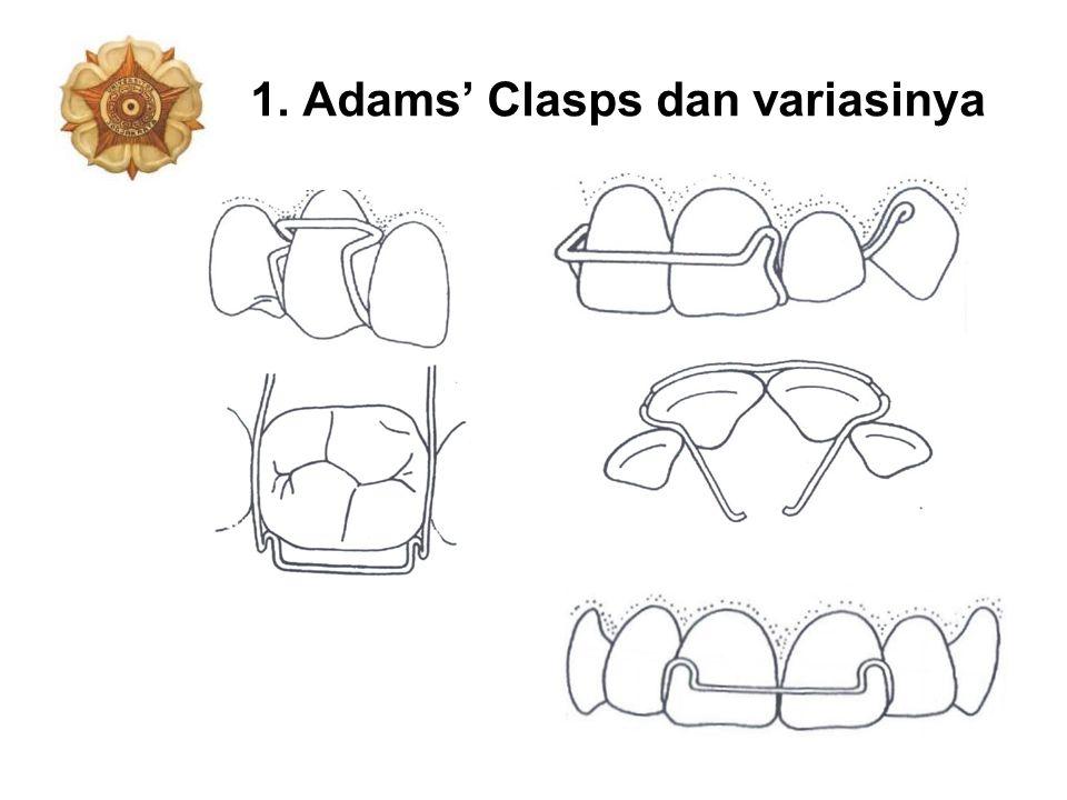 1. Adams' Clasps dan variasinya