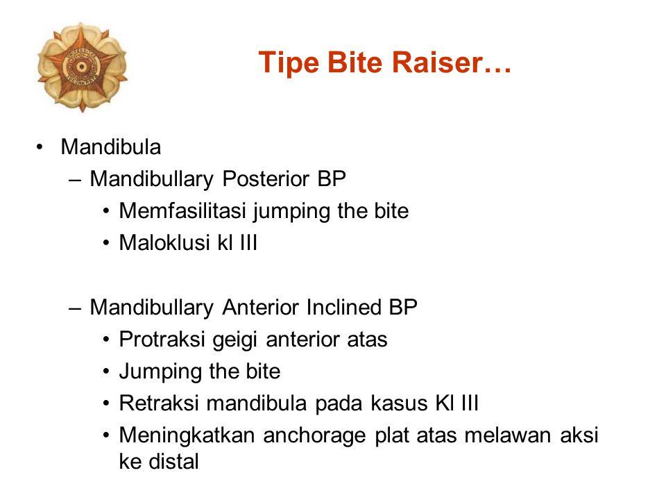 Tipe Bite Raiser… Mandibula Mandibullary Posterior BP