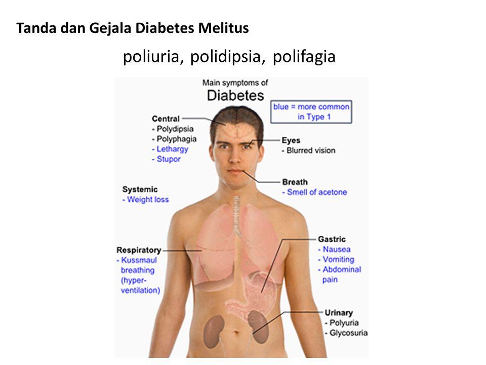 poliuria, polidipsia, polifagia